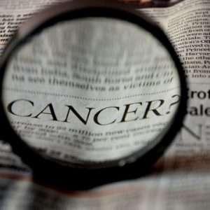Oral Cancer Risk Factors | Jacksonville Best Dentist